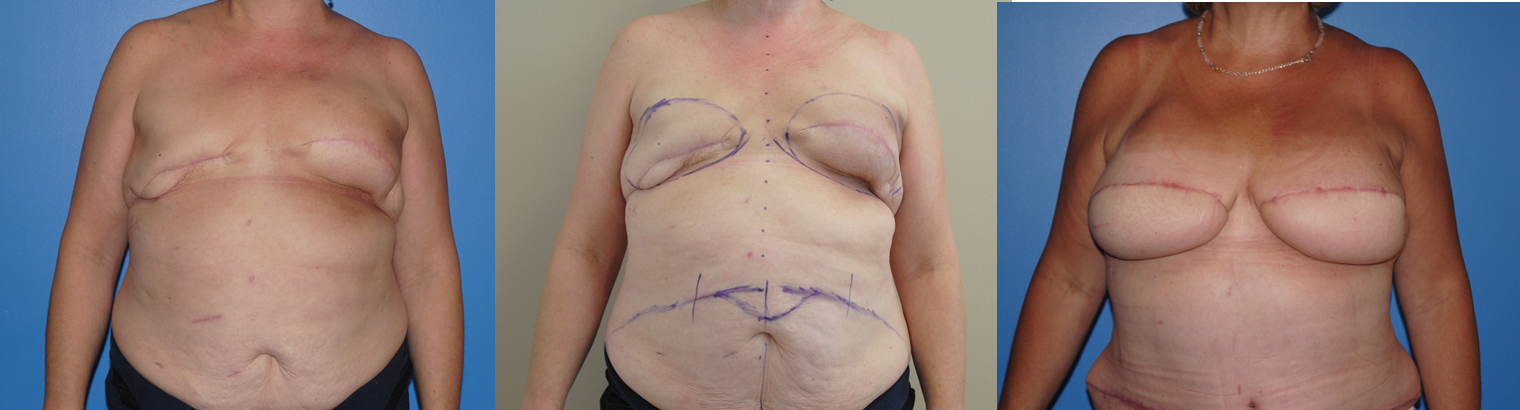 Radiation & Breast Reconstruction with Implants
