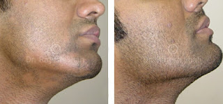 alopecia aureata barba