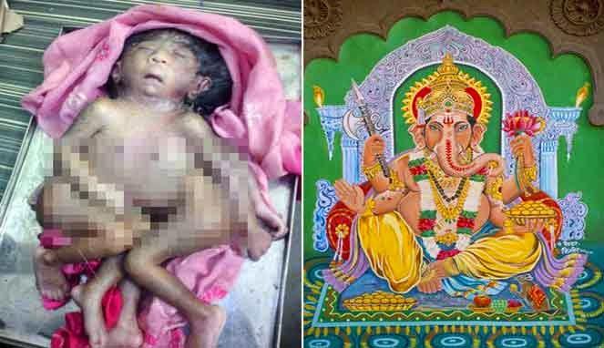 Bayi yang dianggap Jelmaan Dewa Ganesha