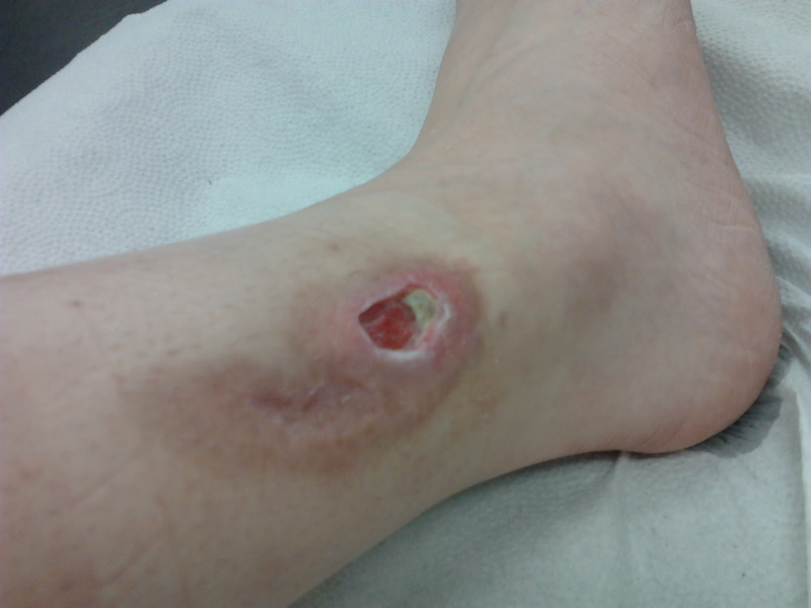 Leg Ulcers - The Circulation Foundation