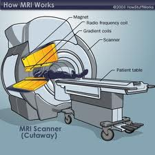 mri scan images of brain tumor Photos and Image.