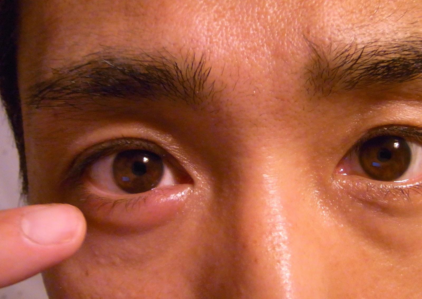 Воспалился глаз: причины, что делать и чем лечить 36