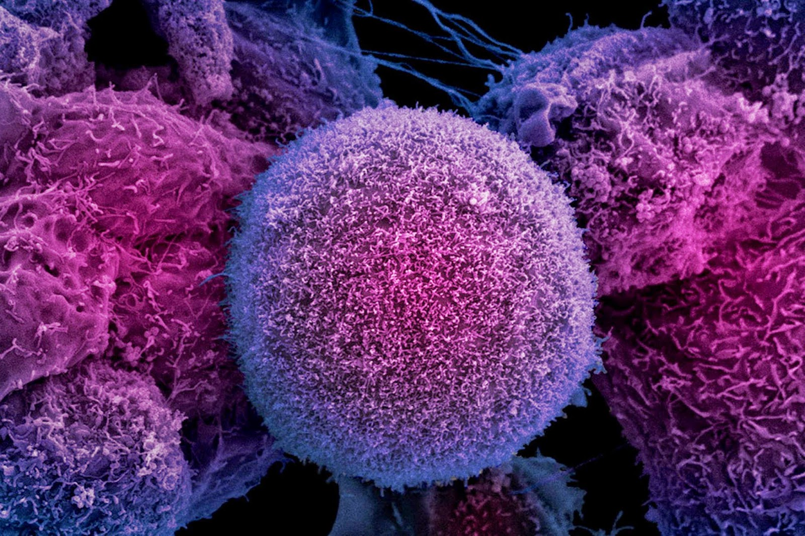 Chemoimmunotherapy Shows Promise For Advanced Prostate Cancers