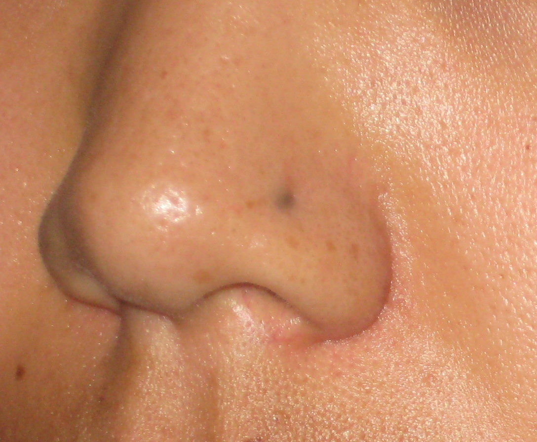 removal of facial dark spots