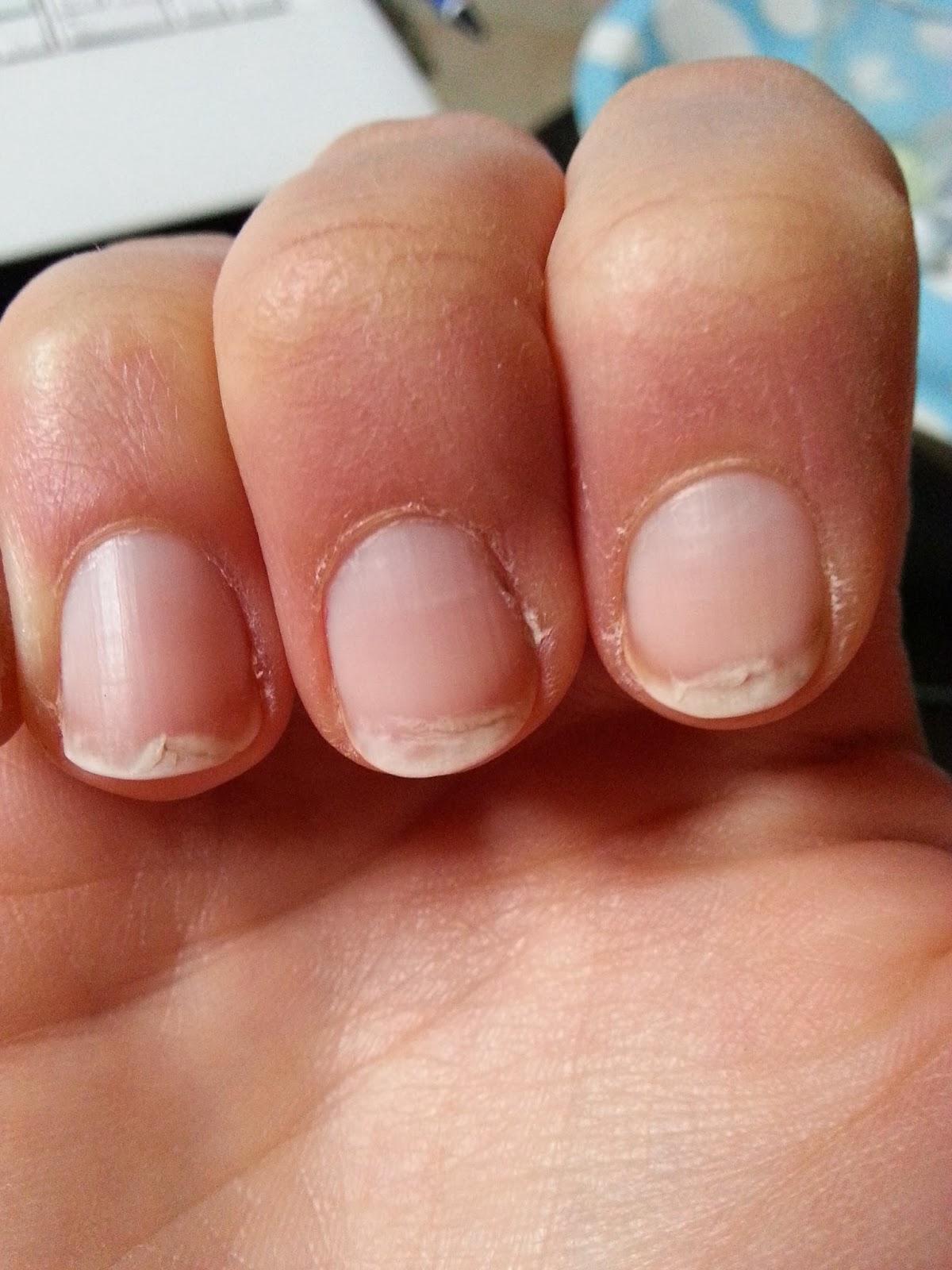 Alors comment faire pour se revitaliser les ongles ?