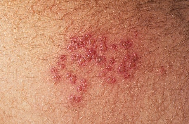 Complete Understanding of What is Genital Herpes