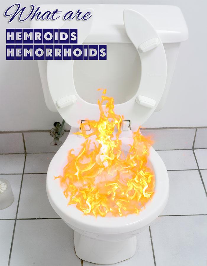 What are Hemroids Hemorrhoids
