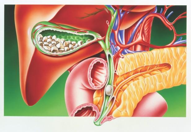 ciroza biliara