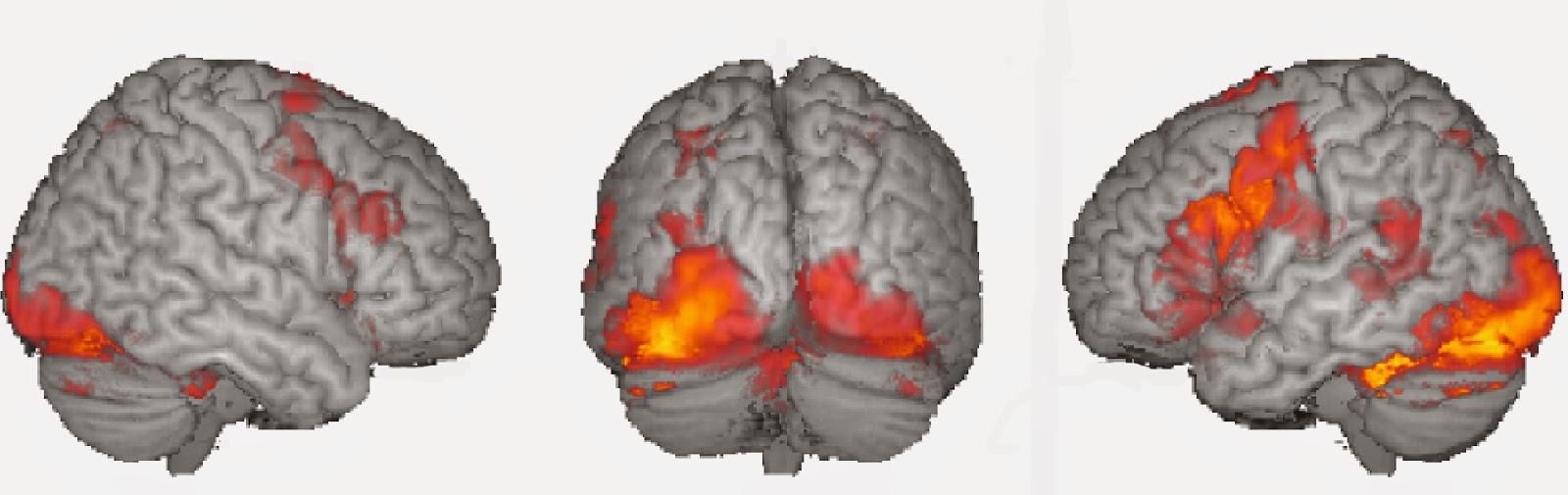 Autism Spectrum Disorder, fMRI