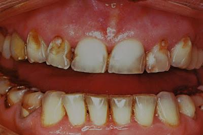 Τι γνωρίζετε για τη διάβρωση των δοντιών; Πότε συμβαίνει και πώς αντιμετωπίζεται;...Γιώργος Κουτσικάκης Χειρουργός Οδοντίατρος Μ.Sc., medlabnews.gr