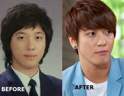 jung yong hwa before after plastic surgery
