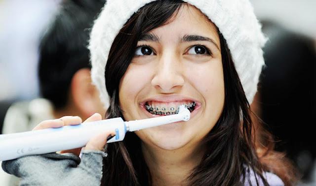 Sikat gigi Behel : jenis-jenis sikat gigi behel dan harga sikat gigi khusus behel