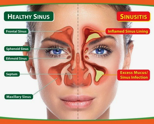 sinusitis, gejala dan bahaya sinusitis