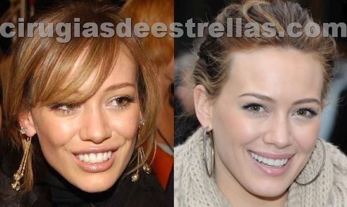 Hilary Duff antes y después