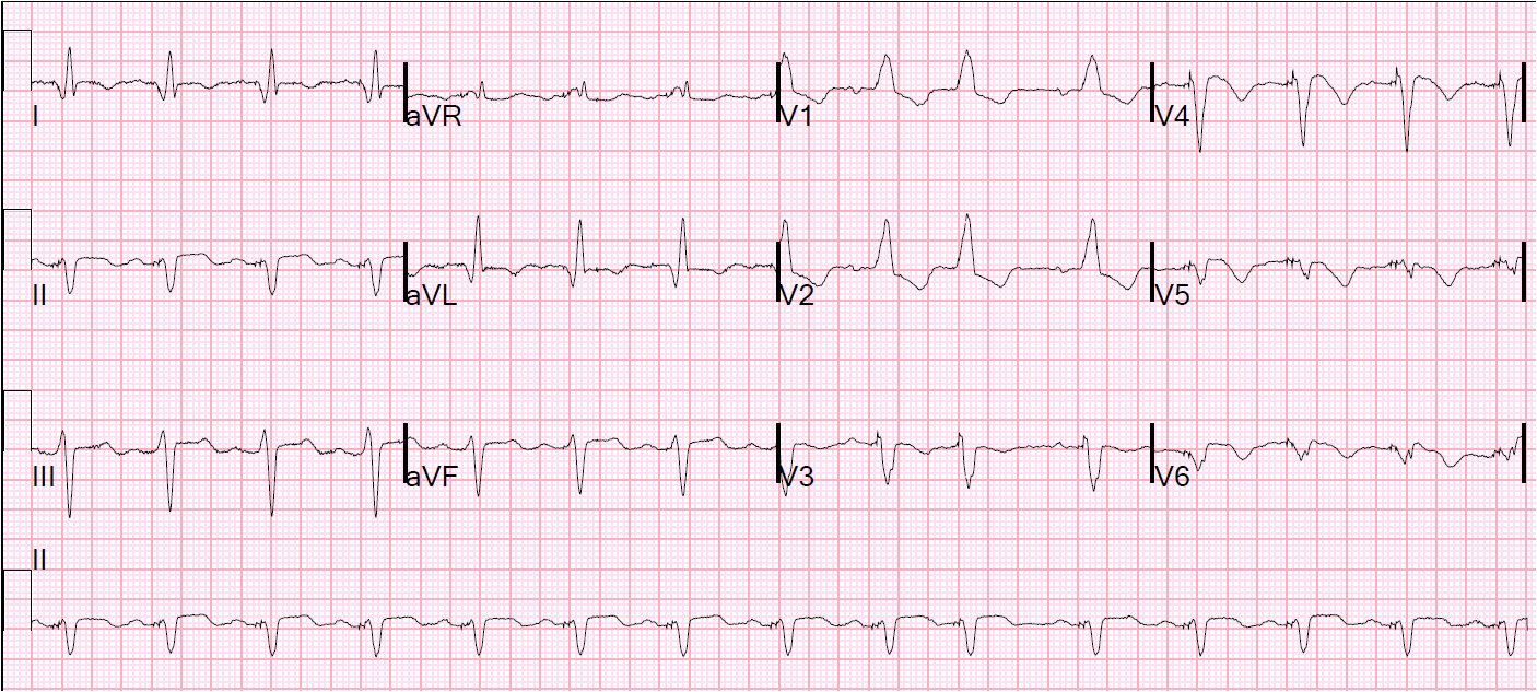 Dr. Smith's ECG Blog: July 2012 of Icd 10 for elevated troponin