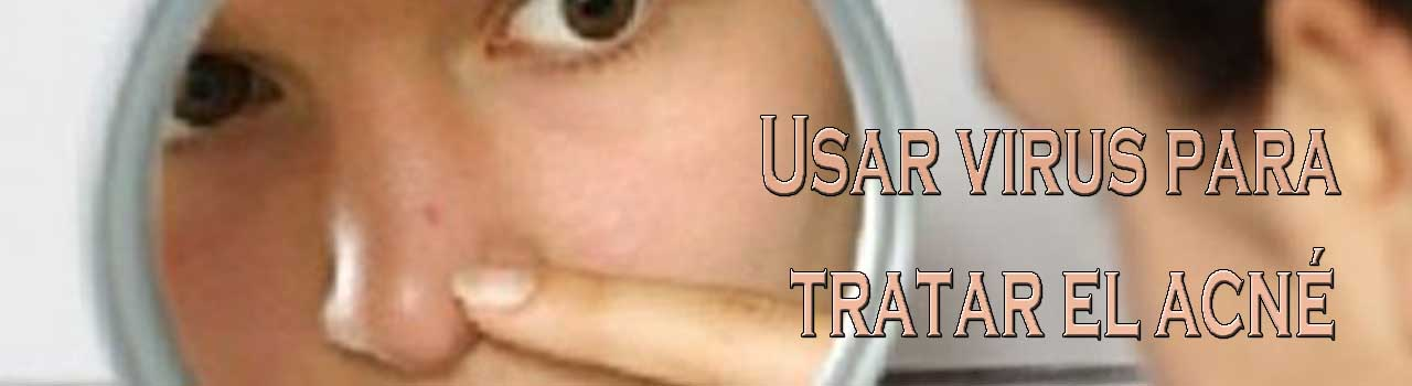Usar virus para tratar el acné