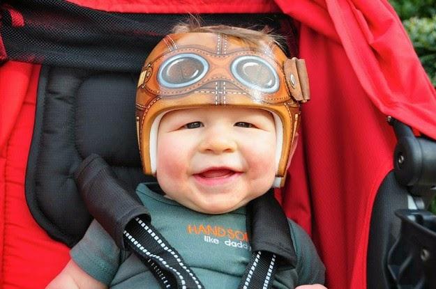 corrective helmets for infants1