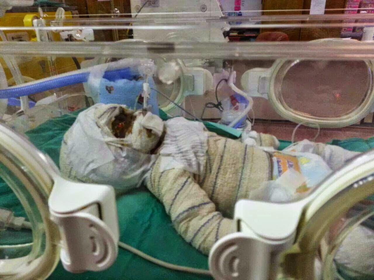 Sedih Bayi Kembar Mangsa Banjir Meninggal Dunia Akibat Kebakaran Semasa Banjir di Kelantan