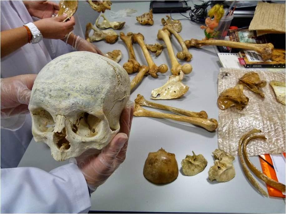 Fotos de medicina forense y criminalistica 48