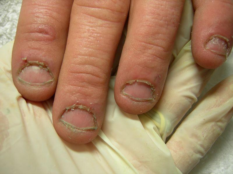 Medicina per un fungo di piede e le dita