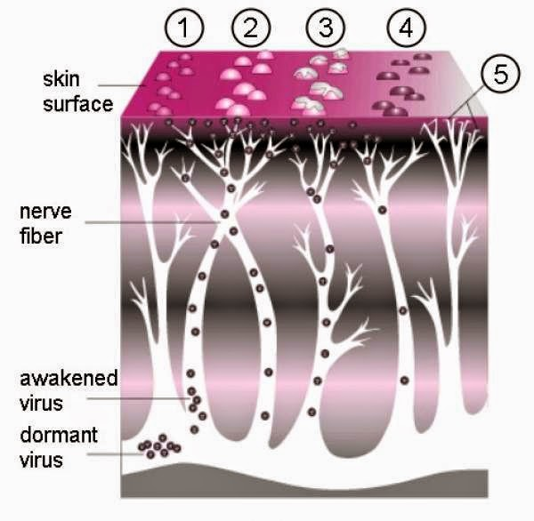 diagram showing the stages in the course of herpes zoster infection