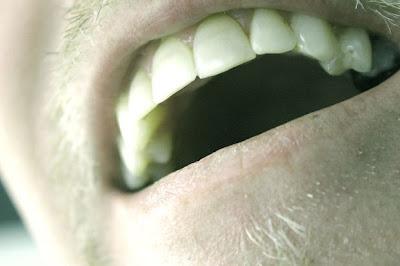 วิธีรักษากลิ่นปากจากปัญหาที่กระเพาะอาหาร