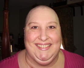 When I Lost My Hair To Chemo: 4/2011