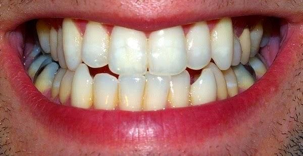 O Sabor Da Vida Receita De Clareamento Dental Caseiro Que Funciona