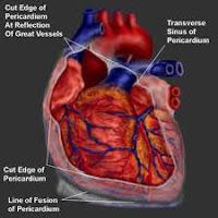 Treatment Pericarditis