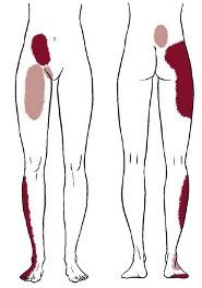 PhysiatryNotYourTypicalFieldOfMedicineSacroiliacJointDysfunction