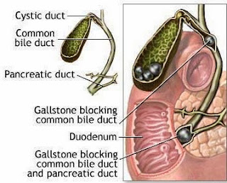 Gallbladder Stone,  பித்தப்பை கல்