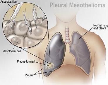 Mesothelioma Beginning Asbestos Lung Cancer Asbestos Lung Cancerasbestos Mesothelioma Mesothelioma Symptoms