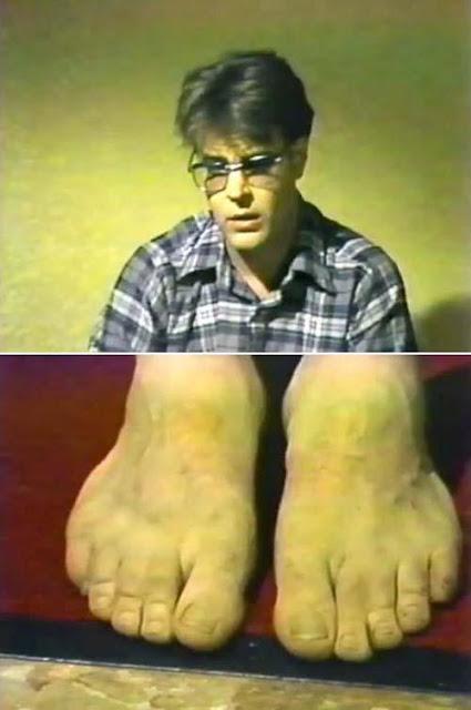 Denzel Washington Finger Deformity