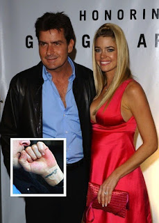 Charlie Sheen and Denise Richards Tattoo Removed