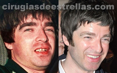 noel gallagher dientes