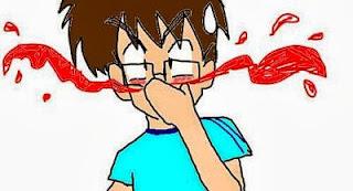 hemorragia-nasal