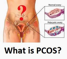 masalah pcos, PCOS menjejaskan tahap kesuburan dan keupayaan mereka untuk hamil dan melahirkan anak. , vitamin shaklee untuk pesakit PCOS, VItamin Shaklee PCOS, hilangkan PCOS,Adakah PCOS Punca Isteri Sukar Hamil ?