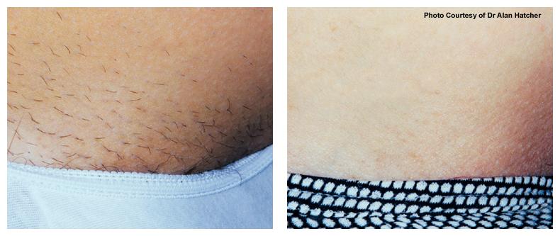 hårborttagning laser växjö