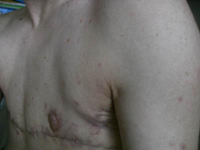 Un bon moyen le traitement osteokhondroza par les moyens nationaux