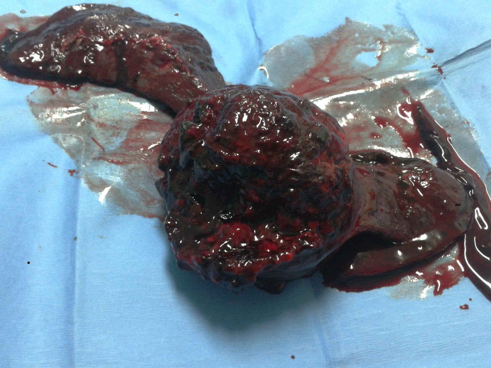 spleen cancer in dogs 28 images splenic neoplasms