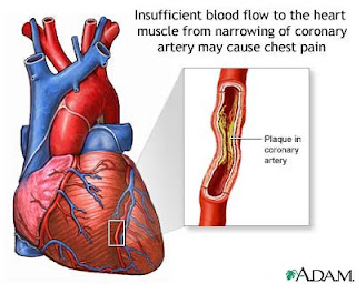 Kejang Jantung (Agina Pectoris)