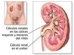tratamiento para prevenir el acido urico como tomar el apio para el acido urico calculos de acido urico causas