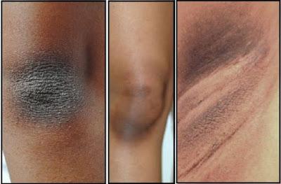 Los mejores remedios caseros para quitar la piel seca y oscura en su cuello, codos, rodillas y las axilas