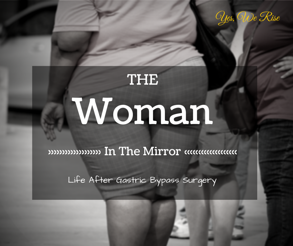 Life after gastric bypass surgery | Yes, We Rise
