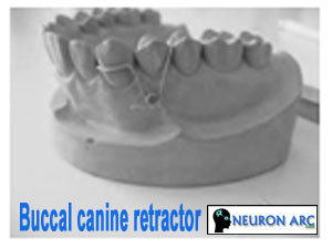 Orthodontic Removable Appliance: Buccal canine retractor