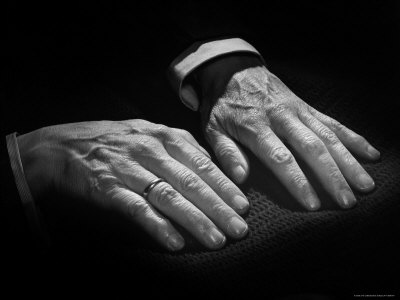 Hand portrait of Rachmaninoff, the great pianist - famous case of suspected Marfan syndrome.