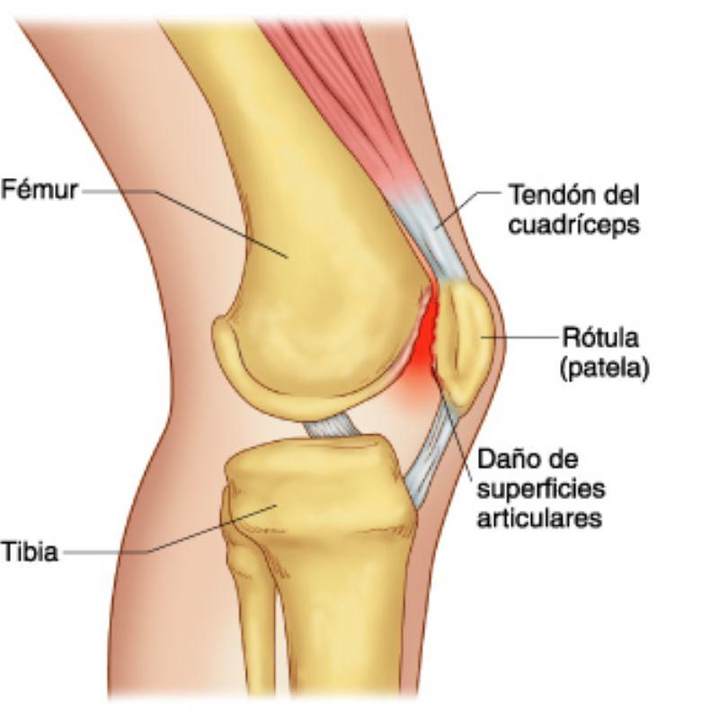 Anatomía aplicada a la Fisioterapia: Condromalacia Rotuliana