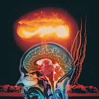 Brain Explosion4