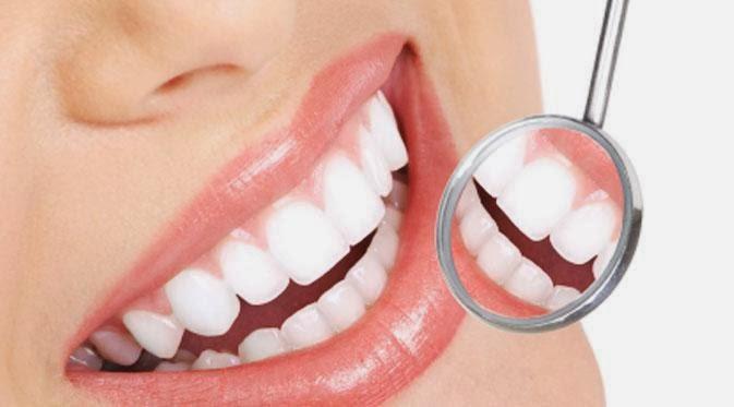 Biar Gigi Tidak Kuning Hindari Makanan Ini