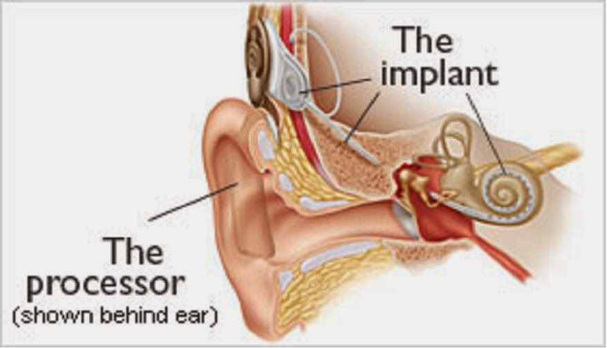 How Cochlear Implant works